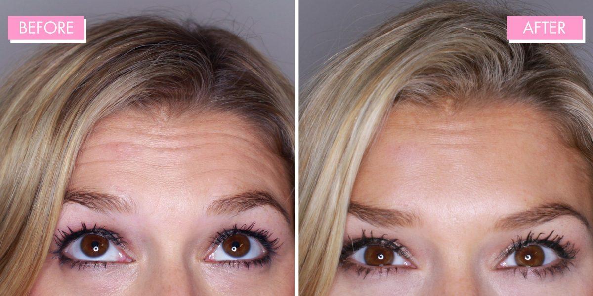 Arbeta med botox i Stockholm